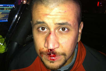 George-zimmerman-bloody-nose-052113